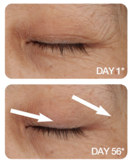 get-rid-of-eye-wrinkes-true-science-life-vantage